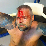biker man fighting cut bleeding bloody